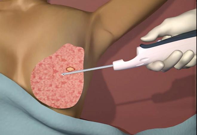 200 phụ nữ được sinh thiết u vú bằng thiết bị hút chân không