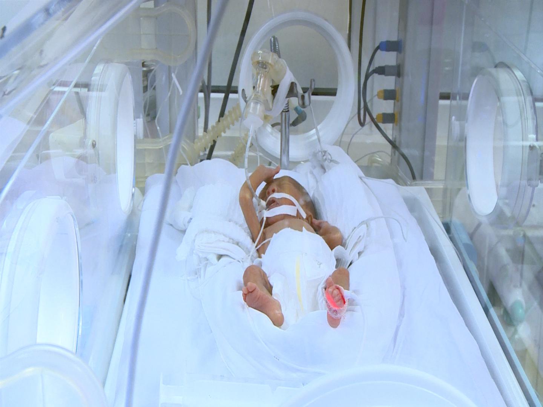 Hơn 100.000 trẻ sinh non mỗi năm