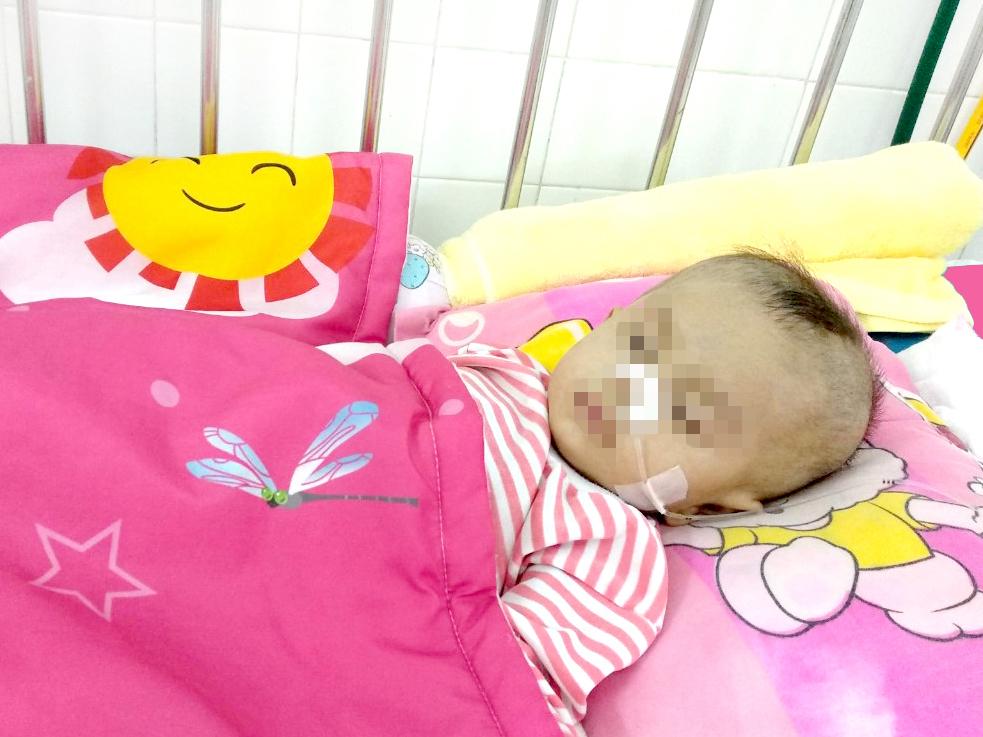 Tiên lượng 90% tử vong, bé 8 tháng tuổi bị hẹp khí quản được cứu sống kỳ diệu