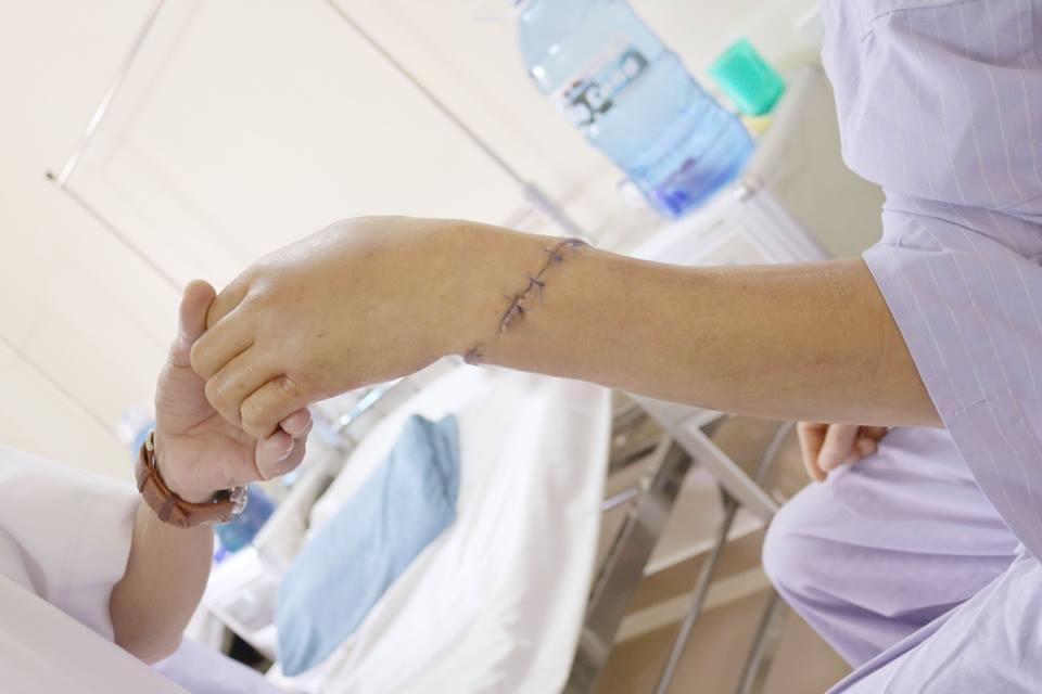 Phẫu thuật nối cẳng tay bị dập nát hoàn toàn cho người đàn ông