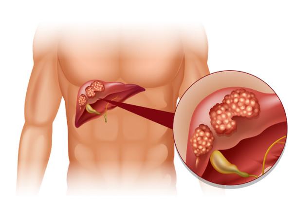 Giải pháp xâm lấn tối thiểu trong điều trị ung thư gan nguyên phát và thứ phát