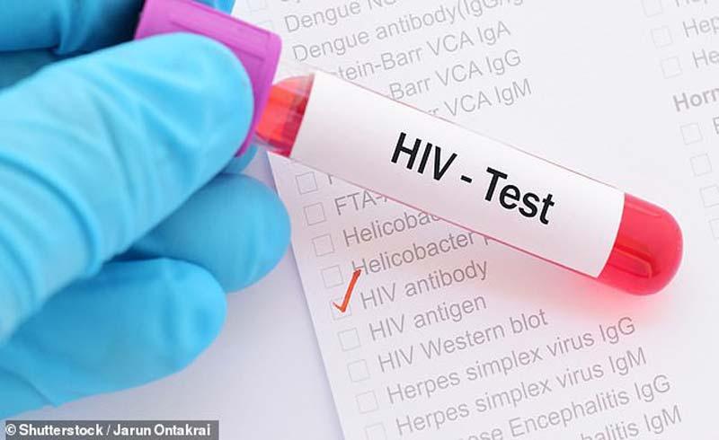 Phương pháp chữa HIV – nghiên cứu đột phá của Viện Pasteur, Paris