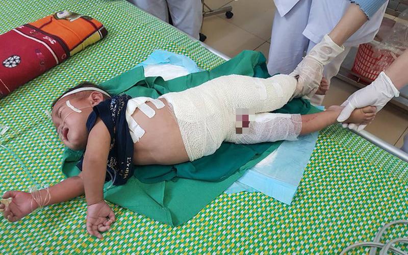 Đáng thương bé trai 2 tuổi người dân tộc ngã vào nồi nước sôi nguy kịch