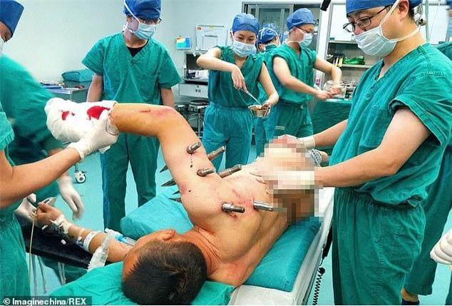 Công nhân Trung Quốc bị 10 cọc thép đâm xuyên người sau tai nạn lao động kinh hoàng