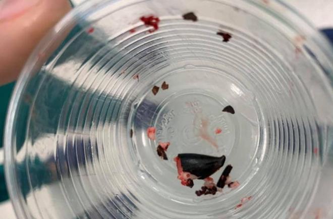 Bác sĩ bóp vụn hạt sapôchê trong phế quản bé trai