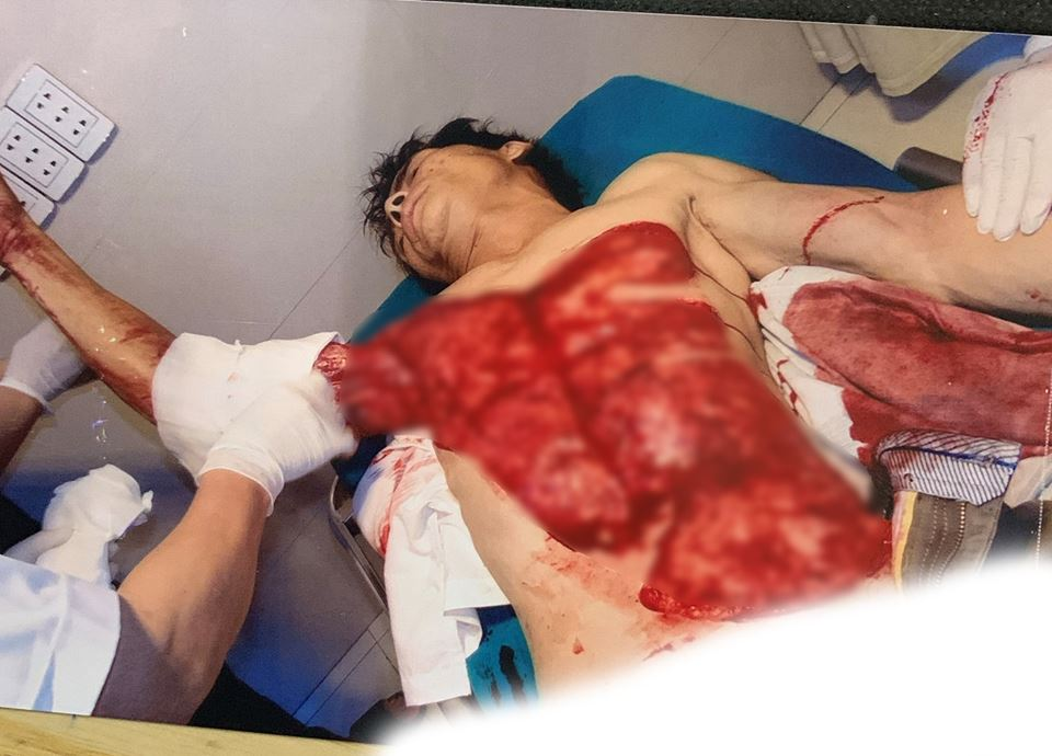 Người đàn ông ngã vào máy bóc gỗ bị lột da vùng ngực