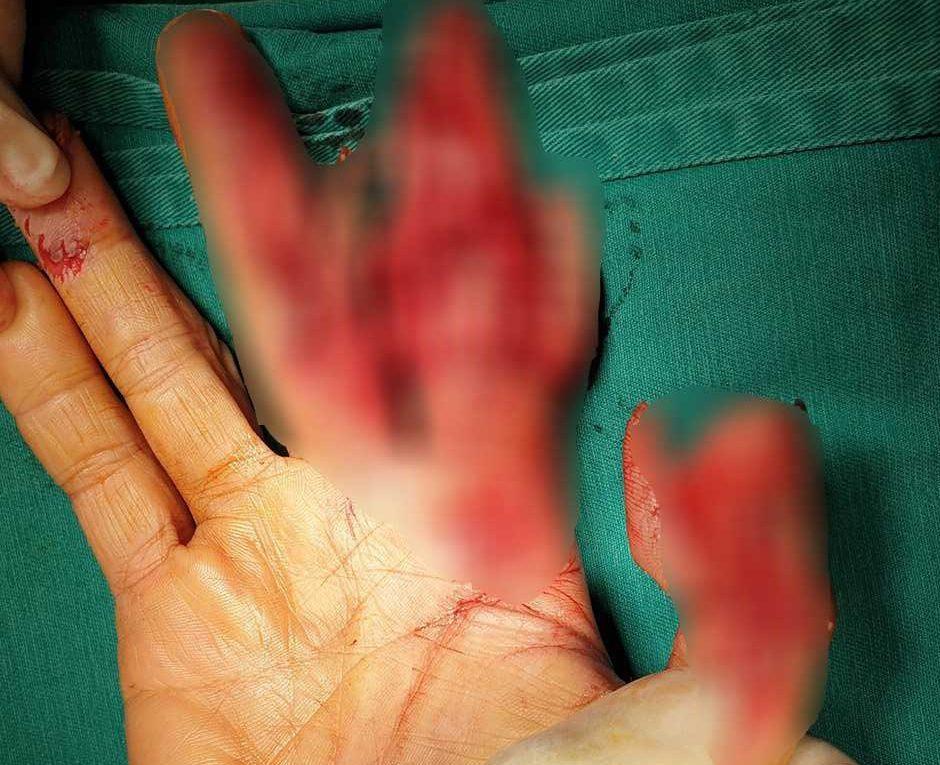 Phú Thọ: Lại thêm một vụ tai nạn lao động liên quan đến máy móc, cơ khí