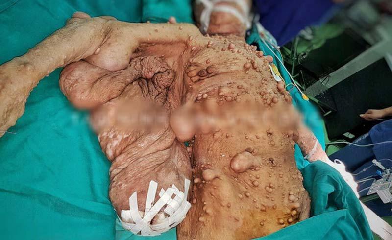 """Phẫu thuật giải phóng """"cánh đại bàng"""" bám chặt cơ thể một phụ nữ suốt 40 năm"""