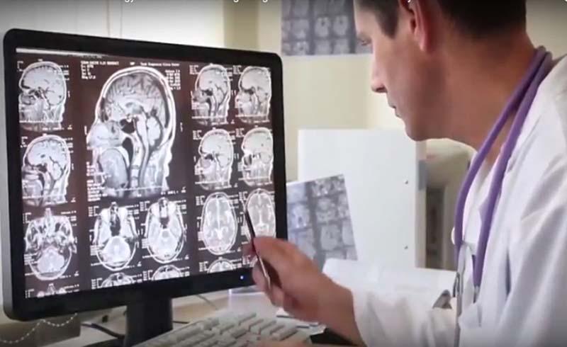 Nữ y tá tự phát hiện u não nhờ tấm áp phích