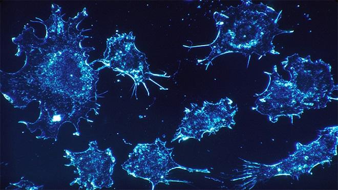 Xét nghiệm tìm ra ung thư trong 10 phút