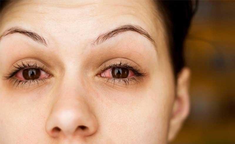 Bệnh khô mắt và cách phòng ngừa