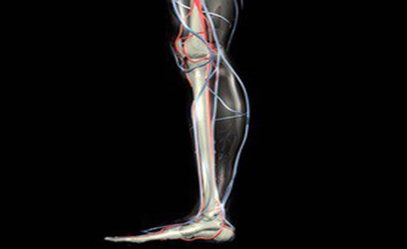 Kỹ thuật mới trong điều trị hẹp động mạch chi dưới