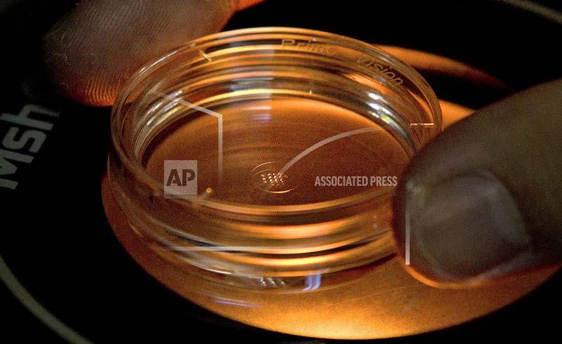 Phương pháp xét nghiệm máu chuẩn đoán bệnh Alzheimer sớm 16 năm