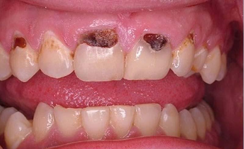 Tưởng đau răng, cụ ông tự nhổ hết hàm