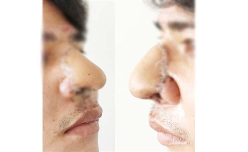 Tạo hình thành công đầu mũi bị dao chém đứt lìa bằng da cẳng tay