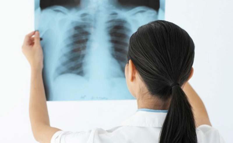 Chẩn đoán hình ảnh: Bước đột phá để phát hiện ung thư
