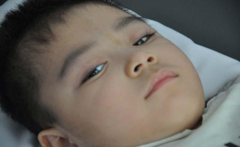 Ánh mắt cầu cứu của bé trai 3 tuổi bị bại não, không có mẹ, thiếu tiền chữa trị
