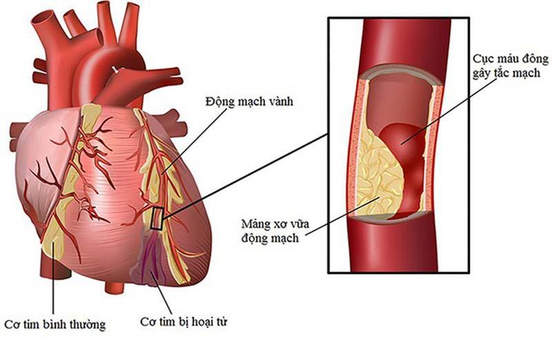 Liệu pháp đầu tiên trị rối loạn đông máu hiếm gặp