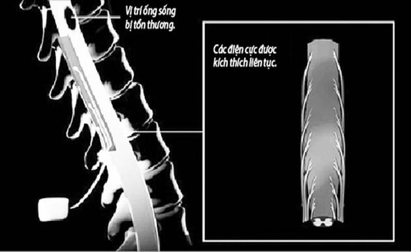 Cấy ghép điện cực vào ống sống: Giành lại quyền kiểm soát chuyển động cho người liệt