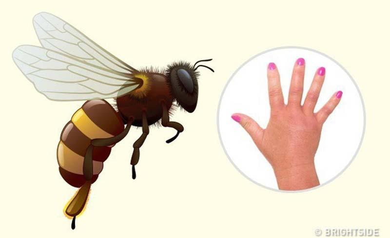 Dấu hiệu nhận biết vết cắn của côn trùng để xử trí đúng cách