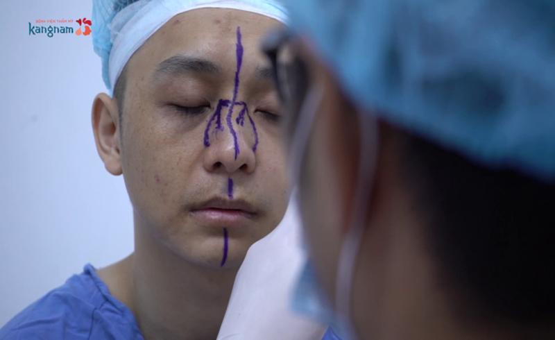 Chữa mũi cong vẹo hơn 10 năm cho bác sĩ trẻ