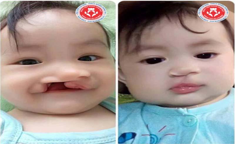 Đăng ký phẫu thuật sứt môi – hở hàm ếch tại Bệnh Viện Răng Hàm Mặt TP. Hồ Chí Minh