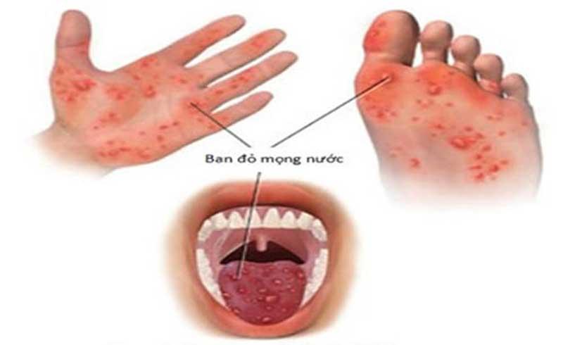 Bệnh tay chân miệng khó phát hiện, dễ bị nhầm với một số bệnh khác