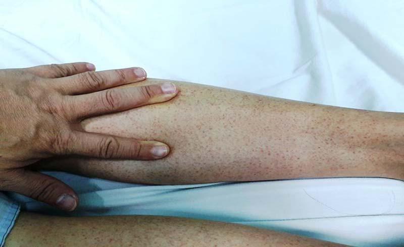 Cảnh báo vào mùa sốt xuất huyết, người dân cần đề phòng muỗi đốt