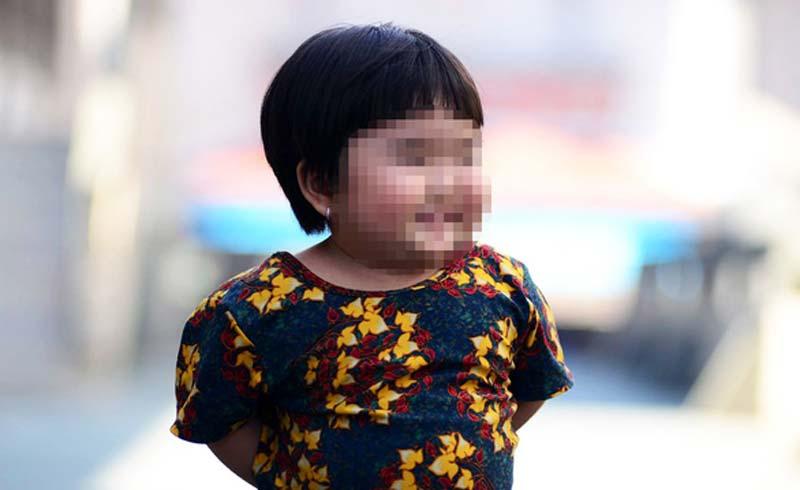 Thừa đạm, chất béo và ít vận động, nhiều trẻ em thành thị phát phì