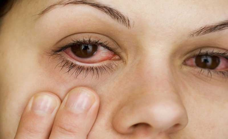 Phẫu thuật cận thị có hết cận?