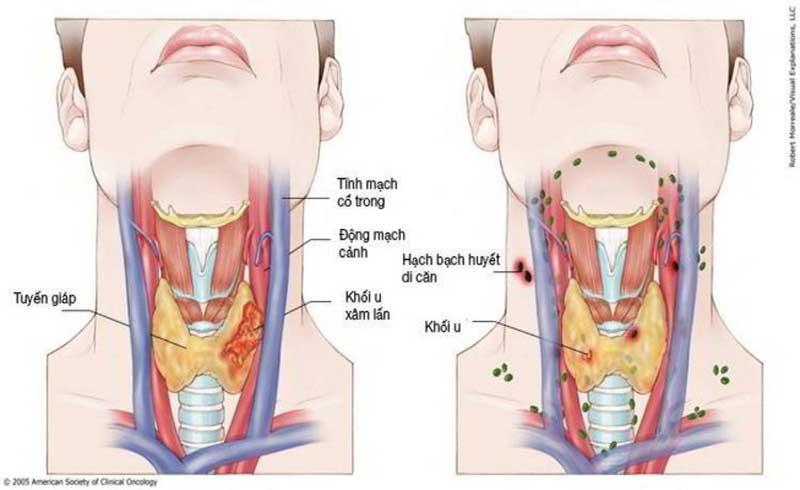 Cách nhận biết sớm triệu chứng ung thư vòm họng