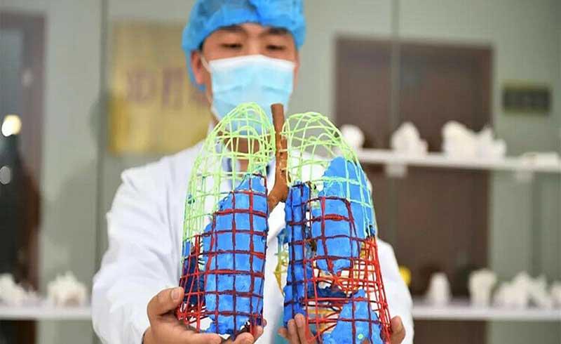 Mô hình 3D phổi bệnh nhân Covid-19