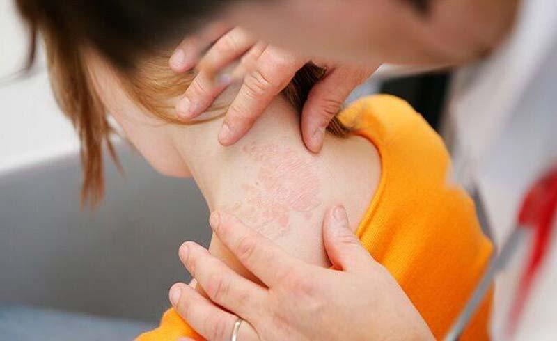 Biểu hiện bệnh Covid-19 trên da