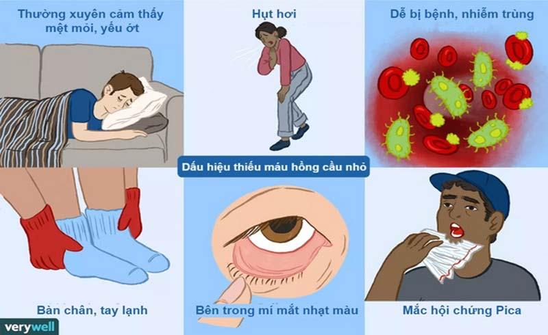 Hội chứng thiếu máu và cách nhận biết