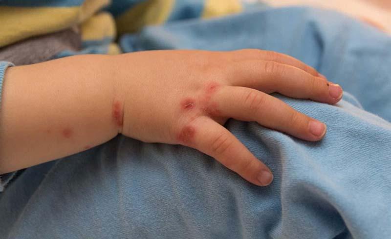 Dấu hiệu nhận biết tay chân miệng ở trẻ
