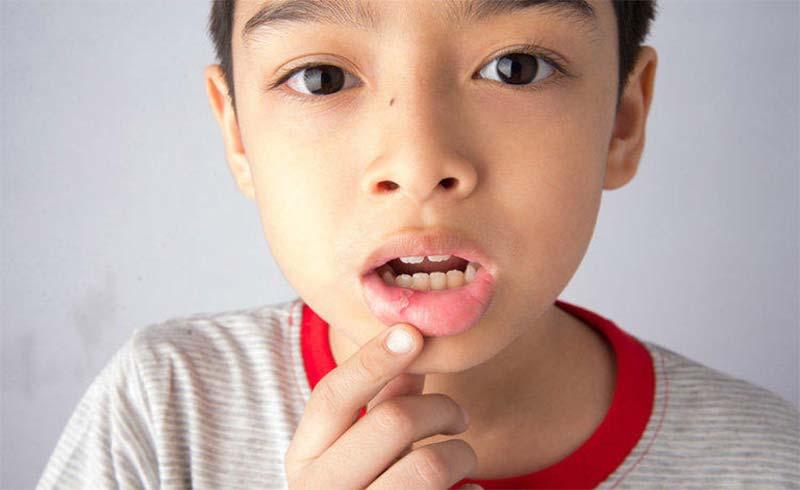 Nhận biết và xử trí bệnh lý niêm mạc miệng thường gặp ở trẻ em
